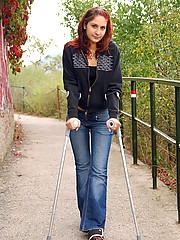Redhead on crutches getting anal fucked hard